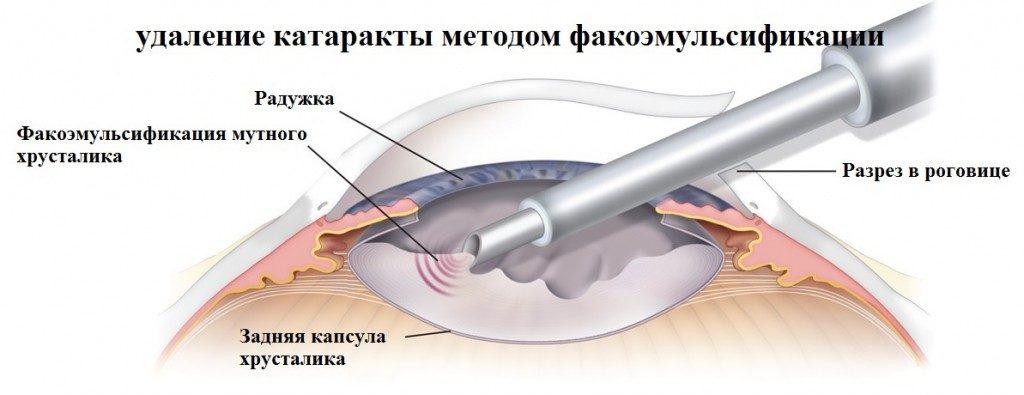 Имплантируем искусственный хрусталик (вам это понадобится лет после 60) - 2