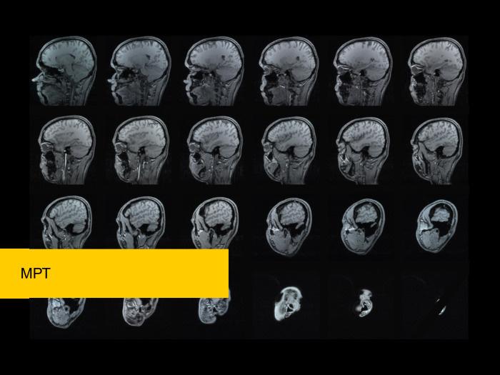 Как наука о данных помогает развитию медицины. Лекция в Яндексе - 7