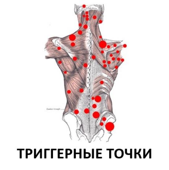 Программирование нервной системы человека. Триггерные точки - 1