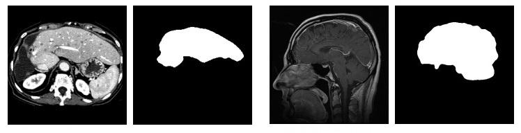 Бинарная сегментация изображений методом фиксации уровня (Level set method) - 1