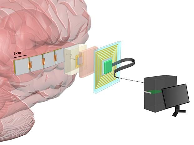 DARPA заказало разработку мозговых имплантатов высокого разрешения для интерфейса «мозг-компьютер» - 1