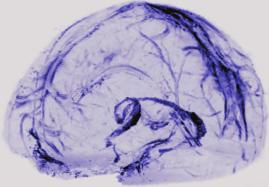 В человеческом мозге нашли лимфатическую систему для удаления отходов - 1