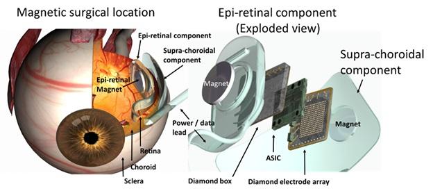Имплантация искусственного глаза