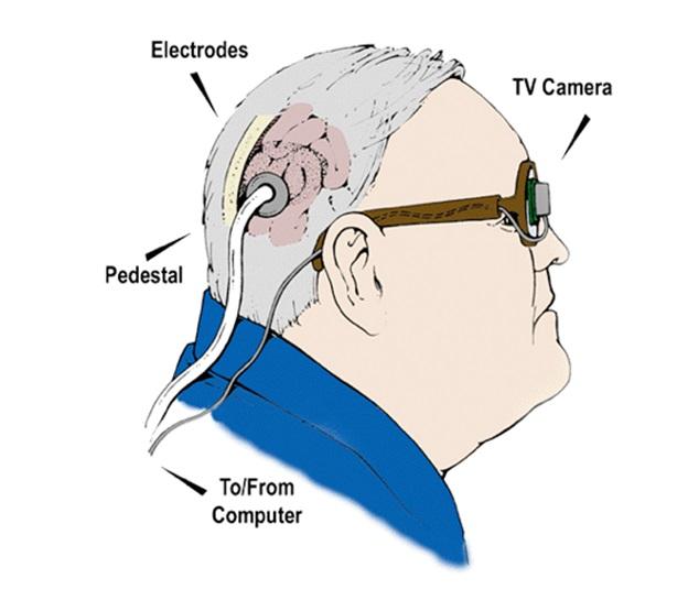 Бионический глаз Добеля