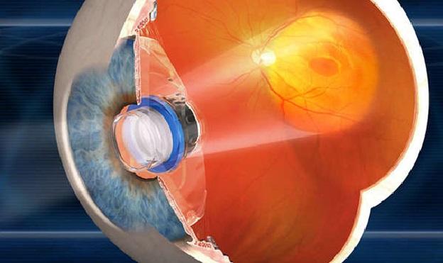 Установка телескопических линз в глаз