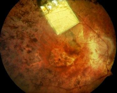 Вид протеза сетчатки на глазном дне