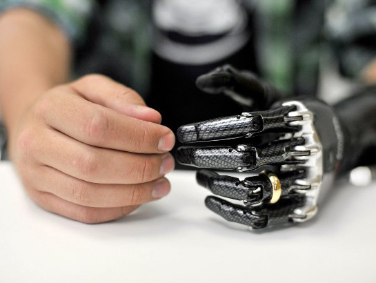Женщина получила бионическую руку с ощущением осязания