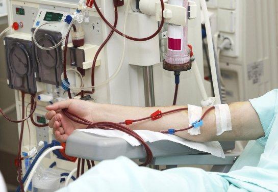 Пациенты, чья жизнь зависит от диализа, получат искусственные вены