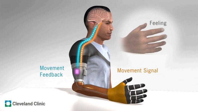 Виброотклик в протезах: новый способ улучшить контроль за бионическими конечностями - 1