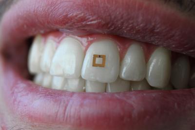Носимые миниатюрные сенсоры помогают контролировать режим питания - 1