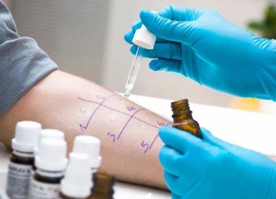 Аллергия на пенициллин может быть абсолютно безопасной