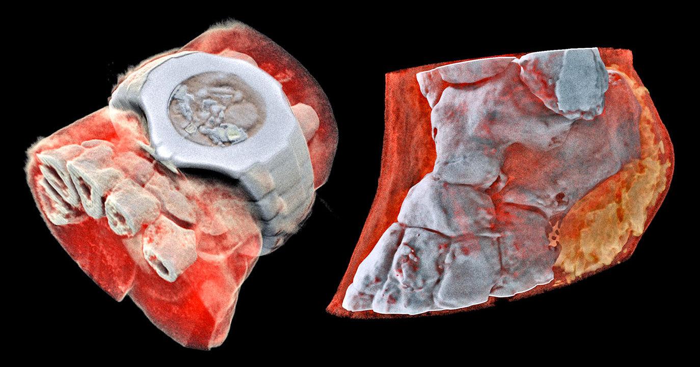 Первый в мире цветной 3D-рентген: как заглянуть внутрь организма без вскрытия