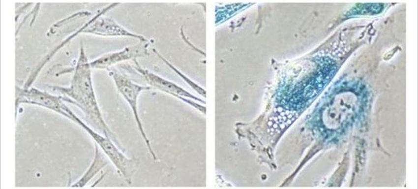 Ученые нашли способ обратить процесс старения клеток - 3