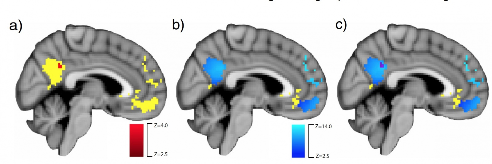 Тренировка эмпатии: стимуляция нейронных связей мозга посредством видеоигры - 7