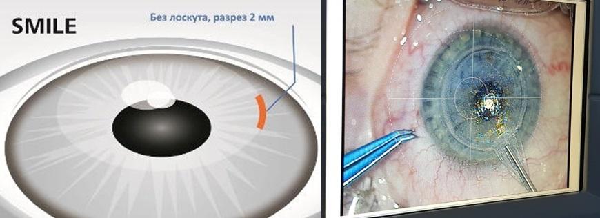 Лазерная коррекция зрения ReLEx SMILE