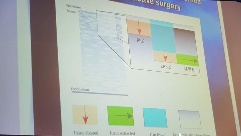 Сравнение методов лазерной коррекции зрения