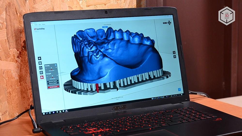 Убийца Form 2? Обзор 3D-принтера MoonRay S100 для стоматологов - 19