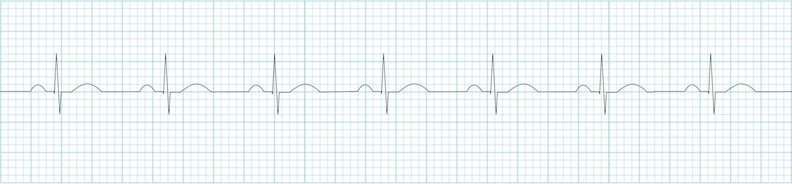 Я врач неотложной помощи, и я хочу поговорить о новой электрокардиограмме Apple Watch - 3