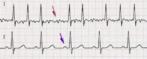 Я врач неотложной помощи, и я хочу поговорить о новой электрокардиограмме Apple Watch - 6