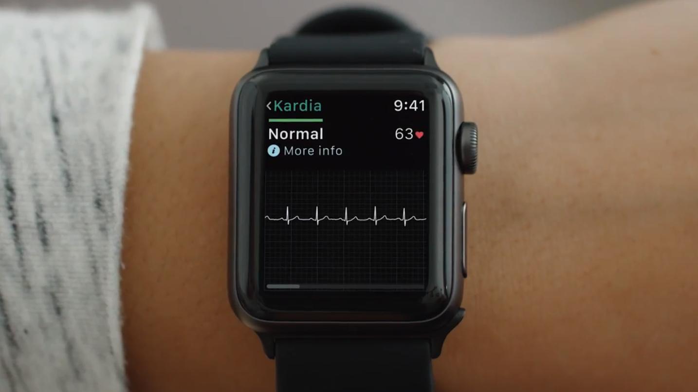 Я врач неотложной помощи, и я хочу поговорить о новой электрокардиограмме Apple Watch - 1