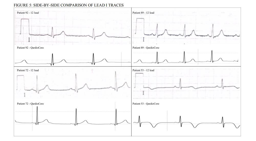 Сердца пламенный мотор: обзор кардиомонитора QardioCore - 16