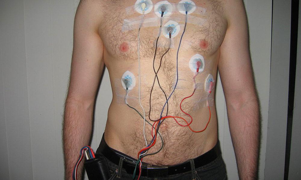 Сердца пламенный мотор: обзор кардиомонитора QardioCore - 5