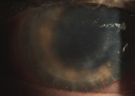 Биомикроскопия роговицы глаза