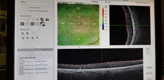 ОКТ сетчатки после операции удаления эпиретинальной мембраны