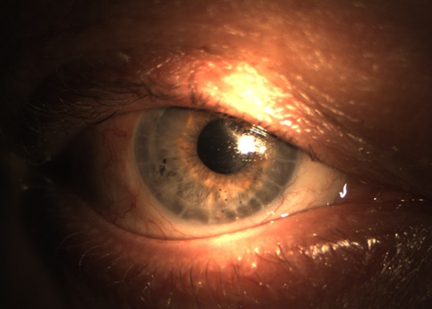 Глаз пациента после операции