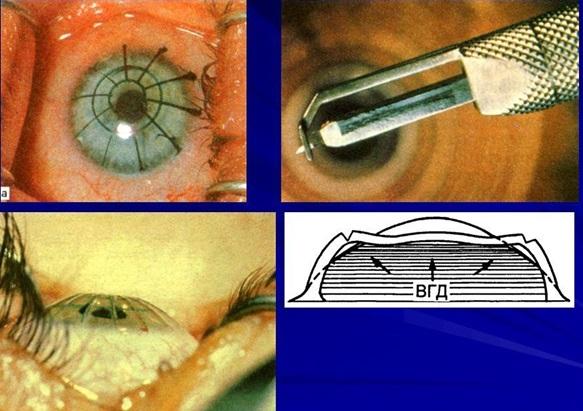 Радиальная кератотомия (насечки на роговице)