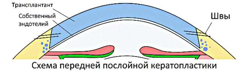 Послойная передняя кератопластика DALK