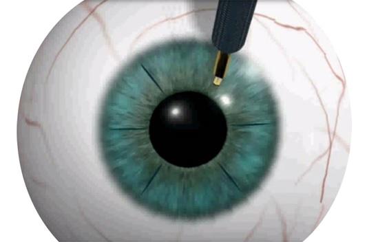 Операции на глазах по улучшению зрения