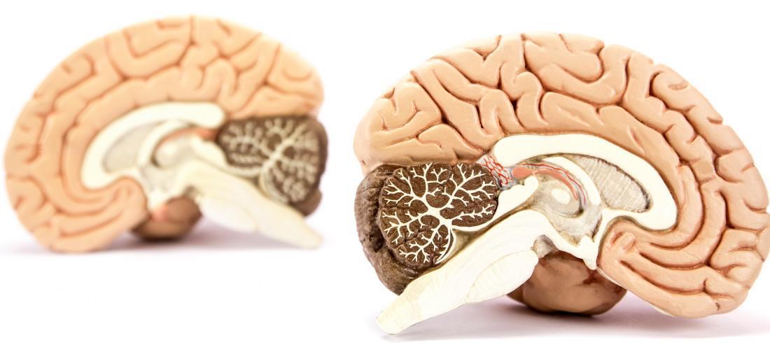 Мозжечок и базальные ядра вместо хрустального шара: как мозг предсказывает будущее - 1