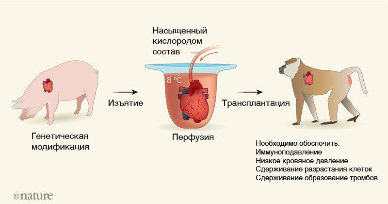 Бабуин с сердцем свиньи: ученые сделали уникальную операцию
