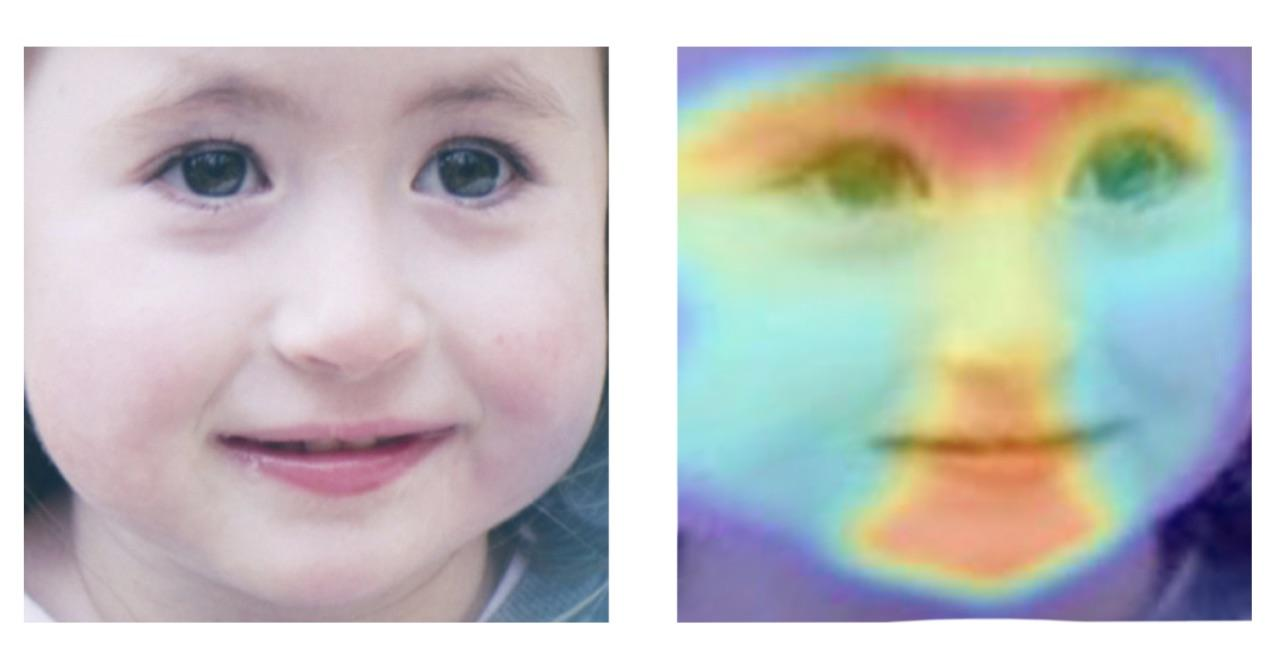 Нейросеть обучили идентифицировать редкие наследственные заболевания по фотографии человека - 2