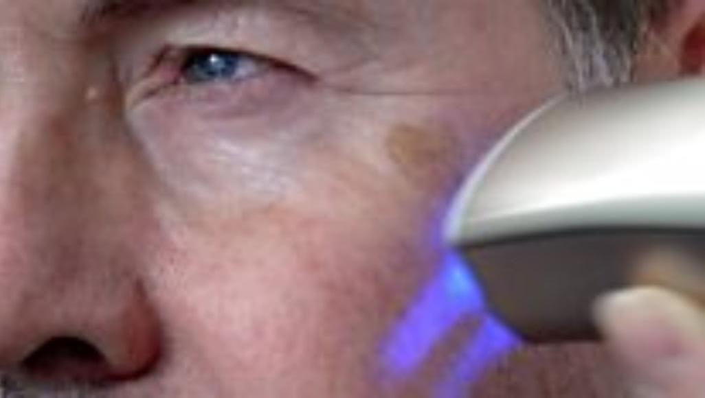 Procter&Gamble выпустила «омолаживающий» принтер для кожи - 1