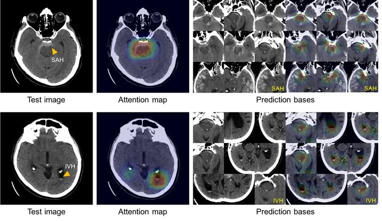 Больница Массачусетса и DeepMind независимо друг от друга приоткрыли «черный ящик» ИИ в медицине - 1