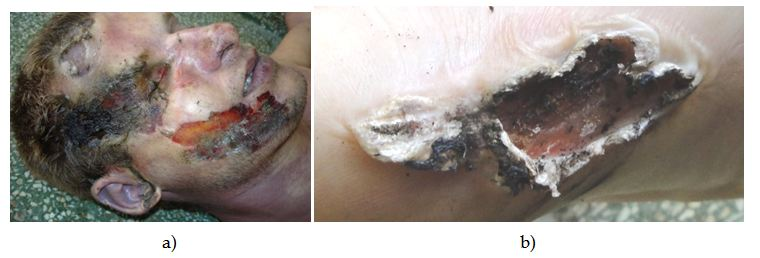 Ликбез по электротравмам: от ожогов и катаракты до переломов и фибрилляции - 10