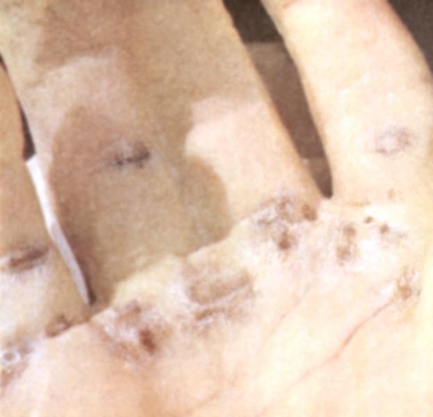 Ликбез по электротравмам: от ожогов и катаракты до переломов и фибрилляции - 11