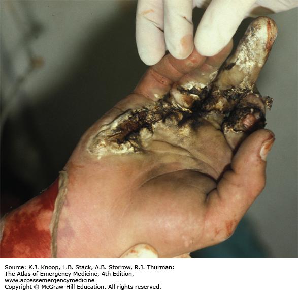 Ликбез по электротравмам: от ожогов и катаракты до переломов и фибрилляции - 13
