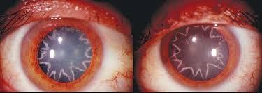 Ликбез по электротравмам: от ожогов и катаракты до переломов и фибрилляции - 14
