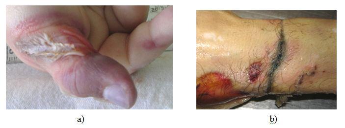 Ликбез по электротравмам: от ожогов и катаракты до переломов и фибрилляции - 8