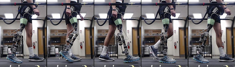 Технологии машинного обучения в разы ускоряют процесс адаптации пациентов к бионическим протезам - 1