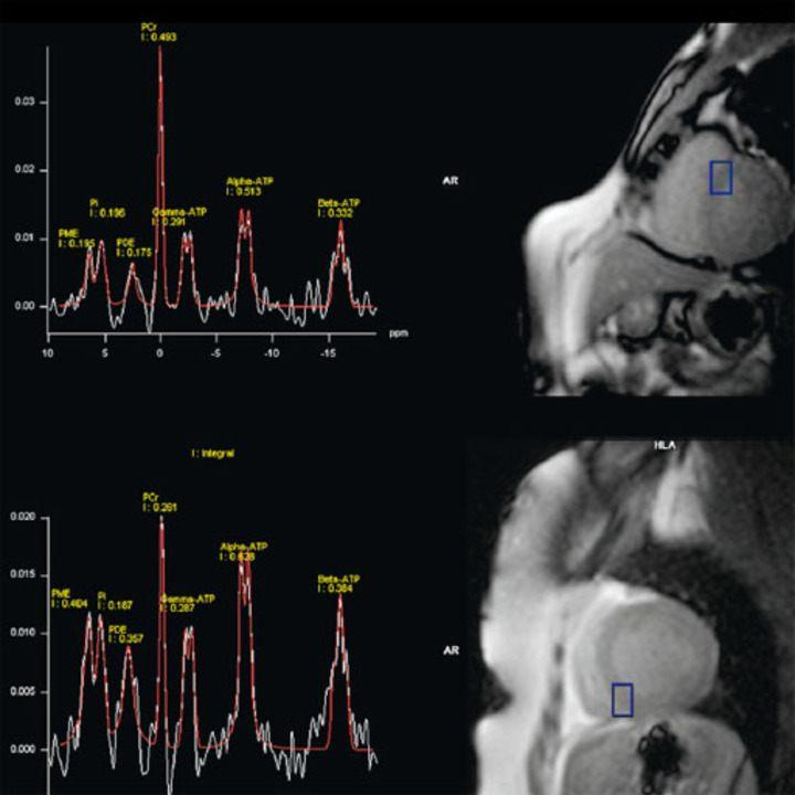 Метод многоядерной МРТ - 1
