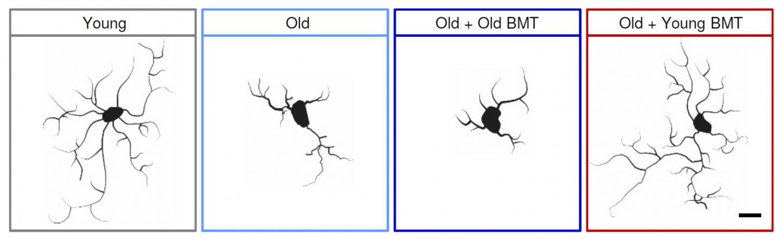 Результаты нового исследования: пересадка костного мозга может замедлять старение - 1