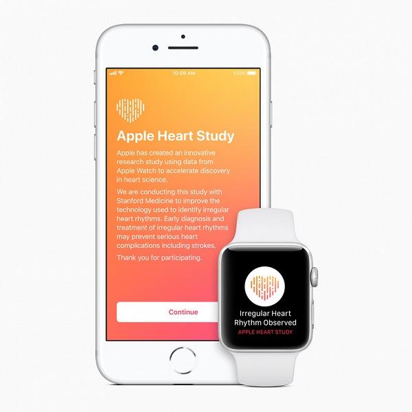 Доказано учёными: умные часы Apple Watch действительно способны диагностировать проблемы с сердцем