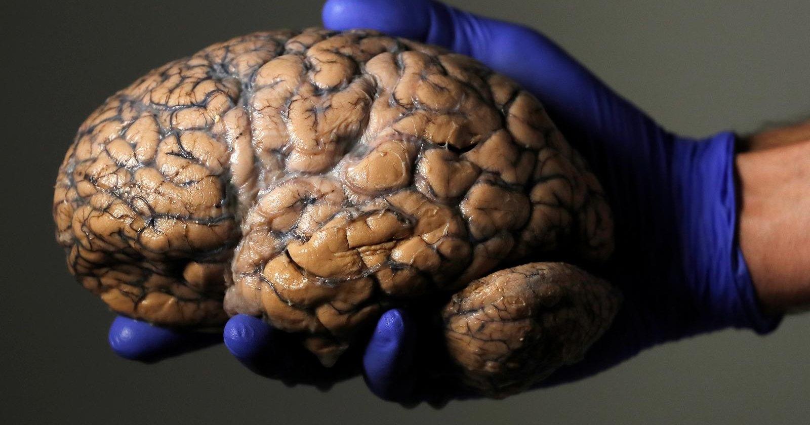Живой мозг «из пробирки» сам присоединяет себя к тканям тела