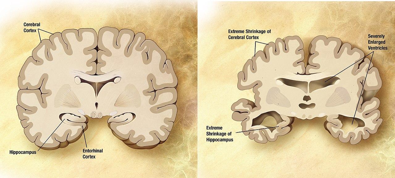 Стимуляция звуком и светом помогает при болезни Альцгеймера, пока у мышей, но результаты обнадеживают - 2