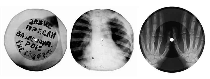 """Рентгенофонограммы возвращаются: Massive attack, Jonsi и др. выпустили записи """"на костях"""" - 3"""