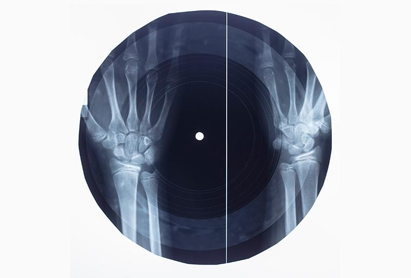 """Рентгенофонограммы возвращаются: Massive attack, Jonsi и др. выпустили записи """"на костях"""" - 5"""